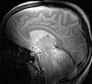 epub Анатомо Клинический атлас рефлексотерапии